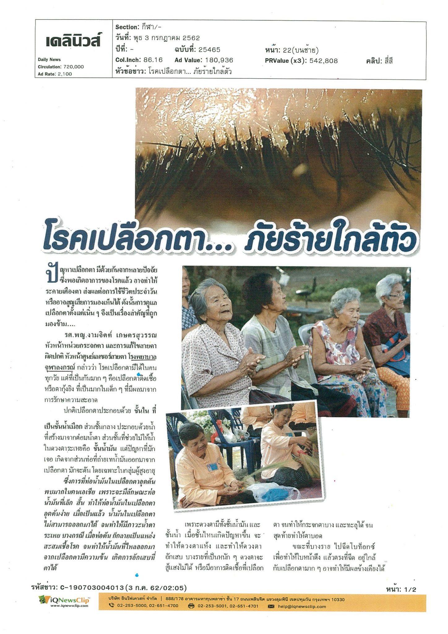 บทความ เรื่องโรคเปลือกตา…ภัยร้ายใกล้ตัว