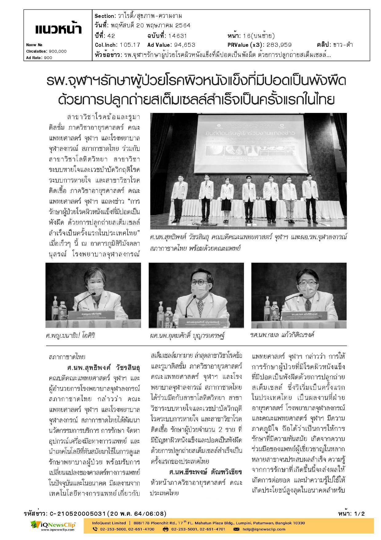 รพ.จุฬาฯ รักษาผู้ป่วยโรคผิวหนังแข็งที่มีปอดเป็นพังผืด  ด้วยการปลูกถ่ายสเต็มเซลล์เป็นครั้งแรกในไทย